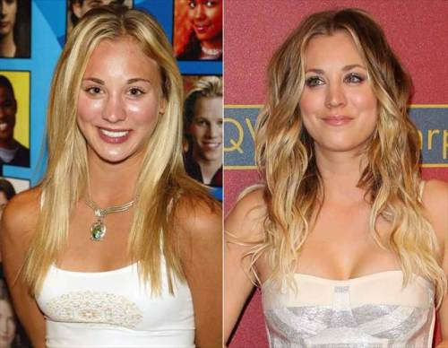 breast implants in celebrities