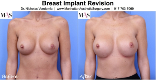 before and after breast implant exchange by new york plastic surgeon Dr. Nicholas Vendemia of Manhattan Aesthetic Surgery in New York